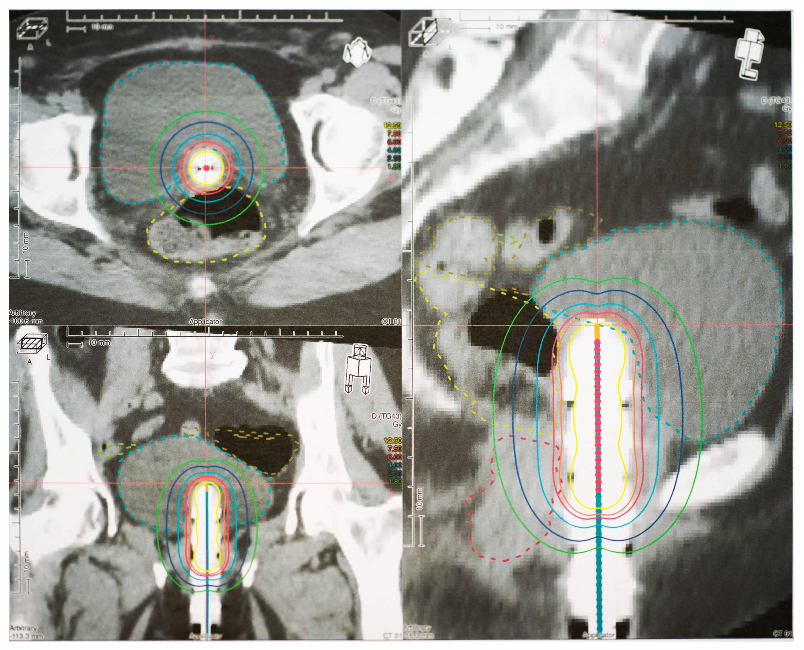 Intrakavitäre und Intraluminale Brachytherapie im AFTERLOADING-Verfahren